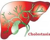 Model for Intrahepatic Cholestasis