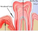 Model for Periodontitis