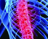 Model for Spinal Cord Injury