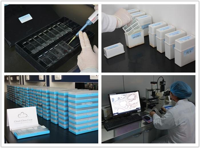 免疫组化实验(IHC)