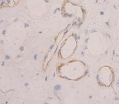 Polyclonal Antibody to Peripheral Myelin Protein 22 (PMP22)