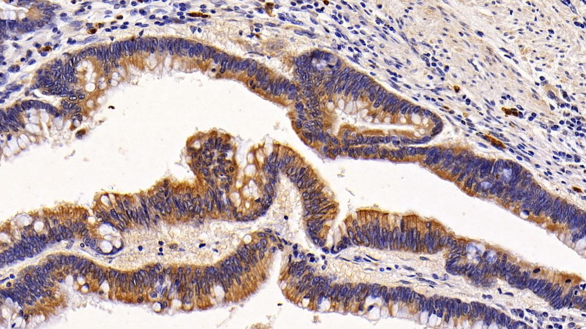 Polyclonal Antibody to Keratin 6A (KRT6A)