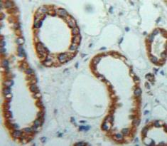 Polyclonal Antibody to Filamin C Gamma (FLNC)