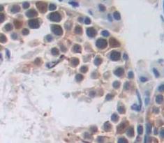 Polyclonal Antibody to RAD51 Homolog (RAD51)