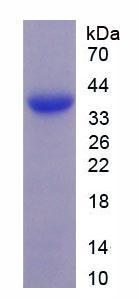 Active Microfibrillar Associated Protein 2 (MFAP2)