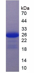 Active Interleukin 17 Receptor C (IL17RC)