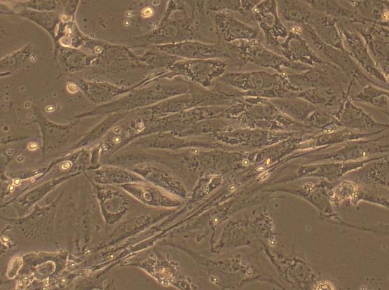 肌成纤维细胞
