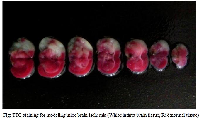 脑缺血模型(小鼠)