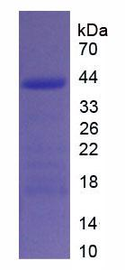 Recombinant Procollagen I N-Terminal Propeptide (PINP)