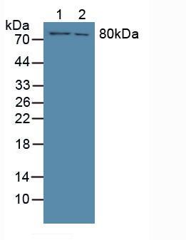 Polyclonal Antibody to Coagulation Factor XIII A1 Polypeptide (F13A1)