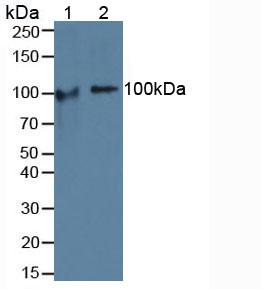 Polyclonal Antibody to Cartilage Oligomeric Matrix Protein (COMP)