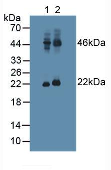 Polyclonal Antibody to Adenylate Cyclase Activating Polypeptide 1, Pituitary (ADCYAP1)