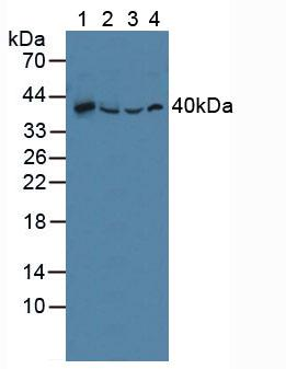 Polyclonal Antibody to Sequestosome 1 (SQSTM1)