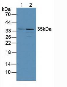 Polyclonal Antibody to PTEN Induced Putative Kinase 1 (PINK1)