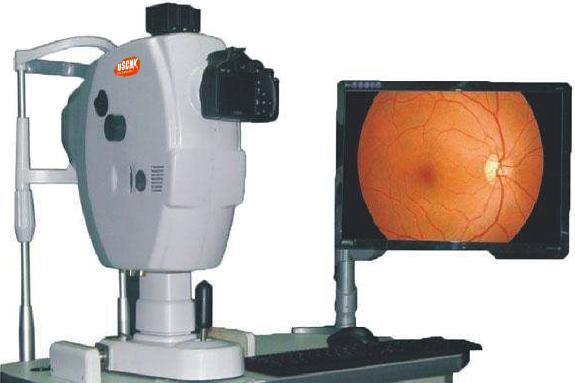 山羊视网膜影像系统LAI043
